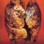 電子タバコ 危険性